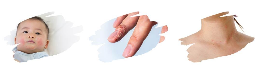 dermatite atopique bébé